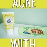 Diaper Cream = Acne Killer